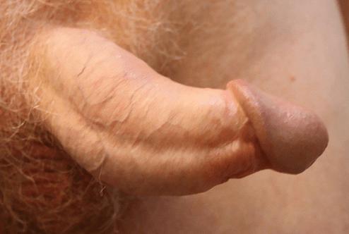 sideways curved penis