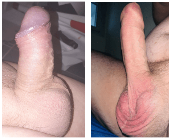male penis before and after male enhancement journey