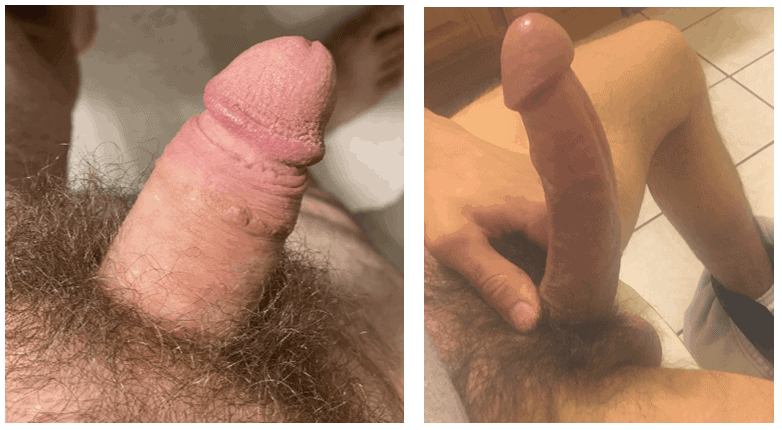 Roger penis before and after using penis extender