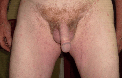 tiny cock picture